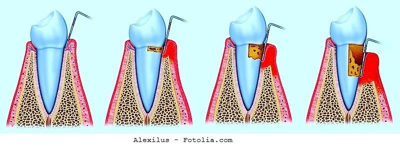 Parodontitis,Behandlung,Ursache