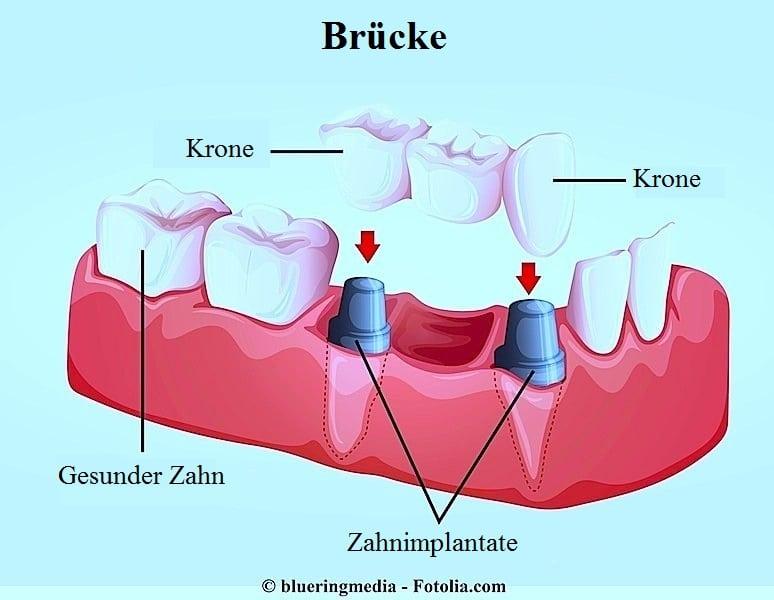 sich berührende Zähne,Brücke,Implantat