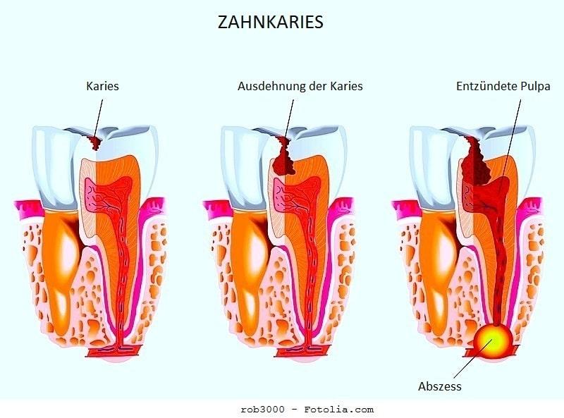 Zahnabszess