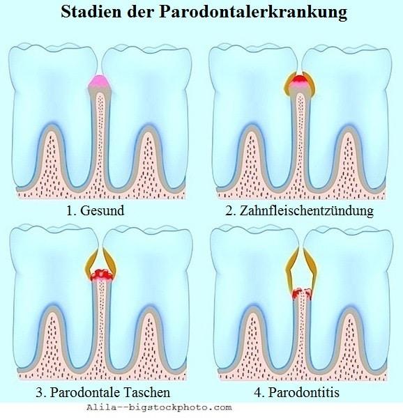 Behandlung der Parodontitis,Stadien