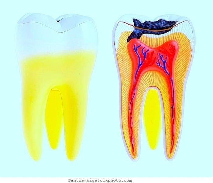 Zahnkaries