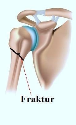 Fraktur,Bruch,Oberarmknochen,proximal,Oberarm,Schmerz
