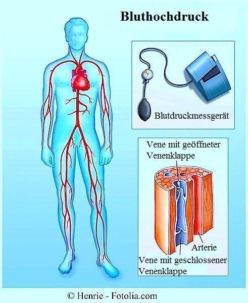 Bluthochdruck oder arterielle Hypertonie