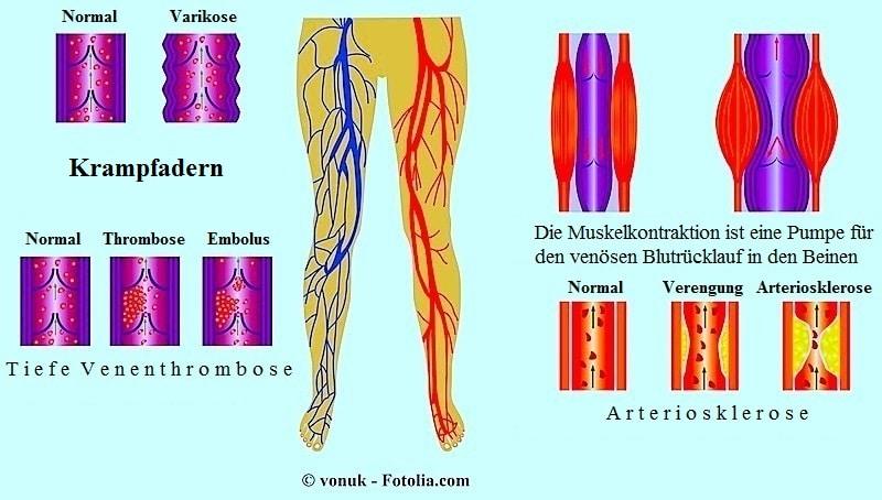 ,Durchblutungsstörungen,Phlebitis,Krampfadern