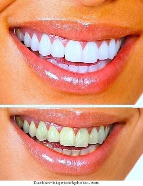 Gelbe Zähne