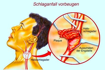 Stent,Karotisstenose,Arteriosklerose