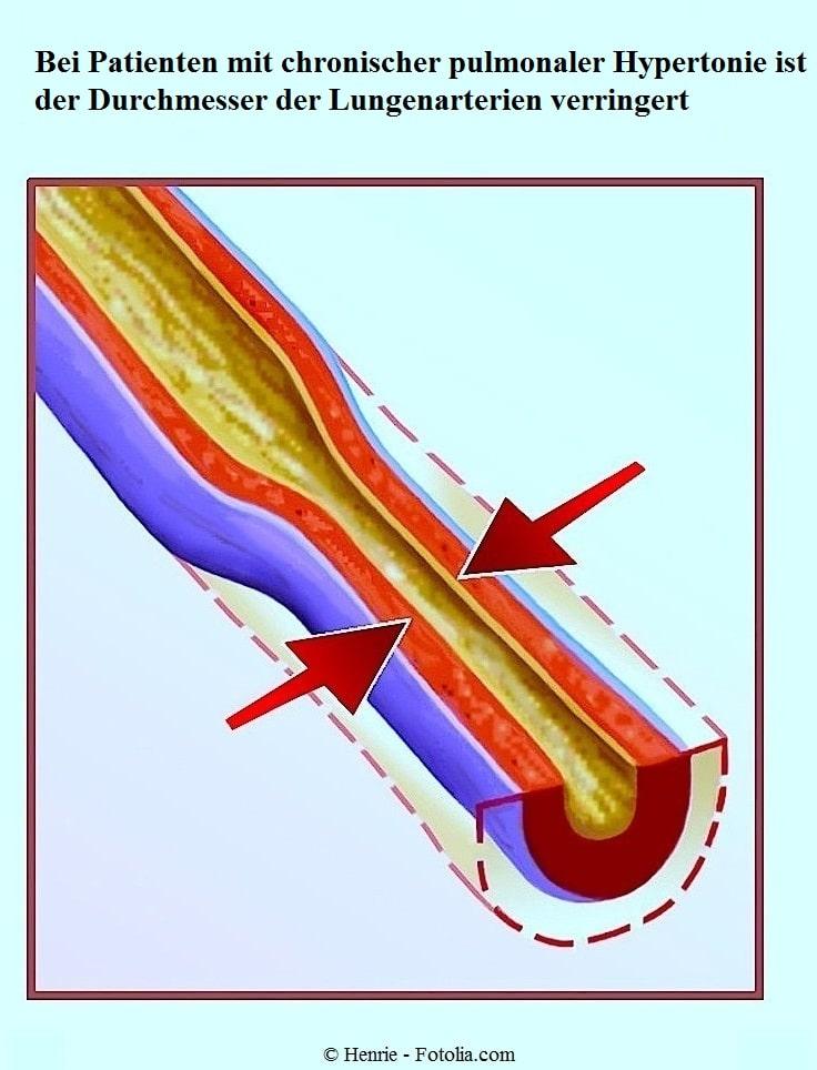 Venenentzündung im Bein