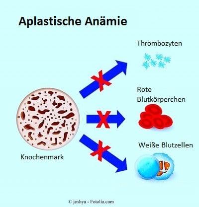 Aplastische Anämie,Knochenmark,Thrombozyten