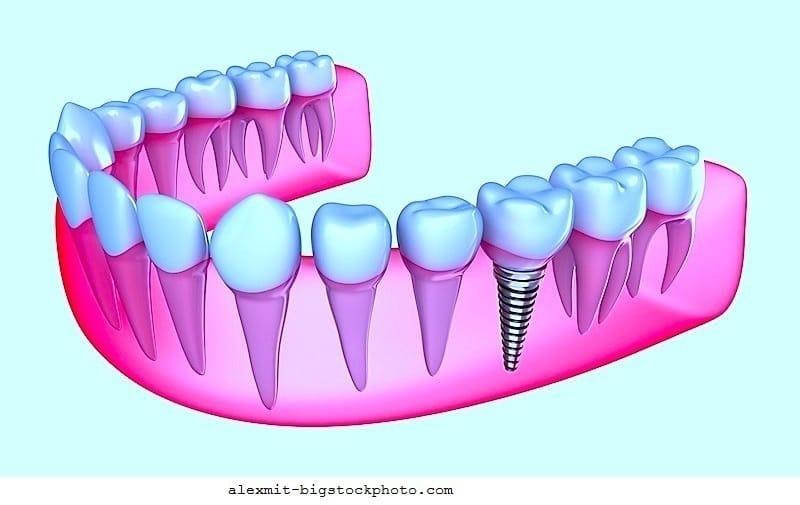 Zahn,Implantat,Ziehen