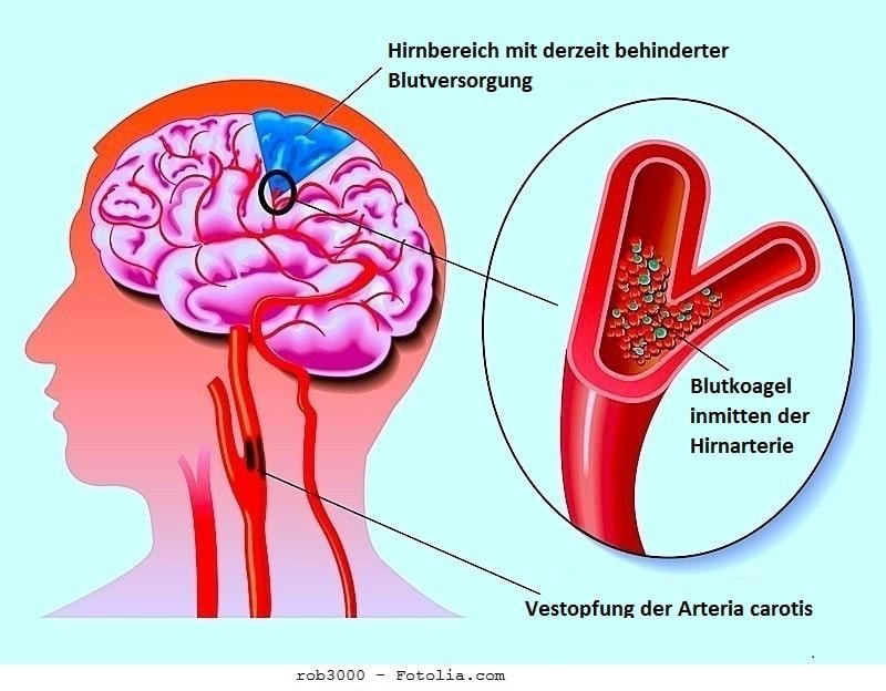 Karotisstenose,Arterie