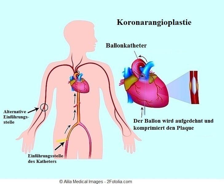 Koronarangioplastie