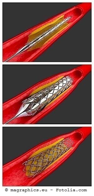 Koronarangiographie,Untersuchung