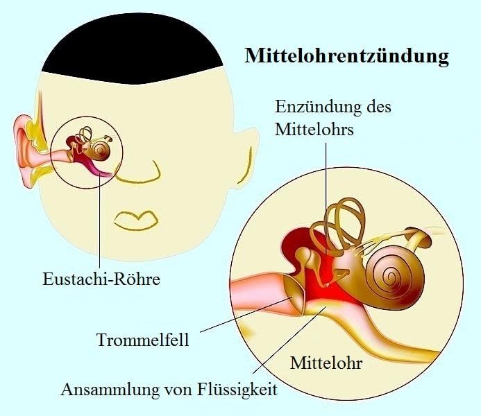 Akute und chronische Mittelohrentzündung