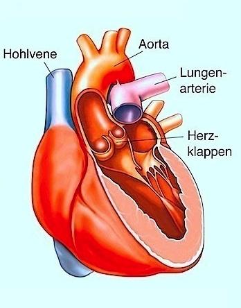 Aortenstenose