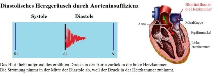 Diastolisches-HerzgerÑusch-Aorteninsuffizienz