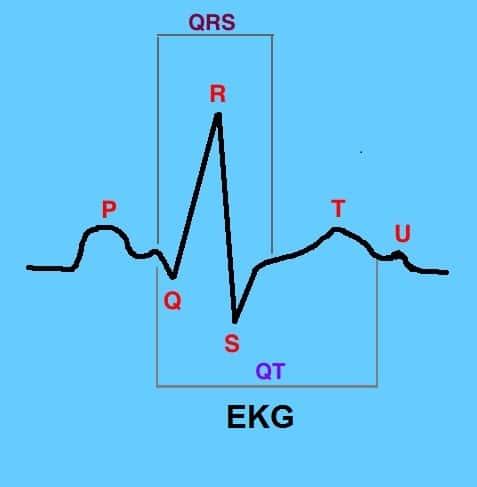 Elektrokardiogramm,Welle,QRS,ST
