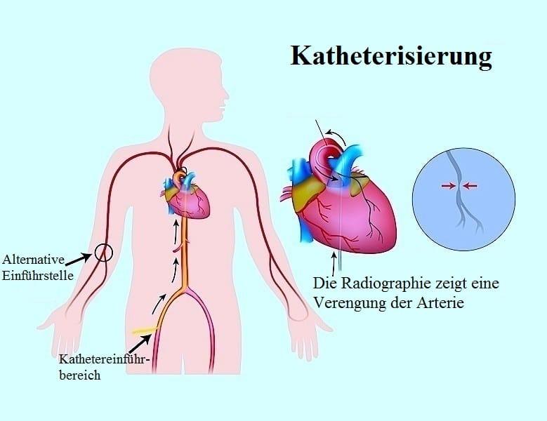 Extrasystole,Herzkatheteruntersuchung