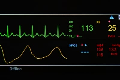 Herzgeräusch