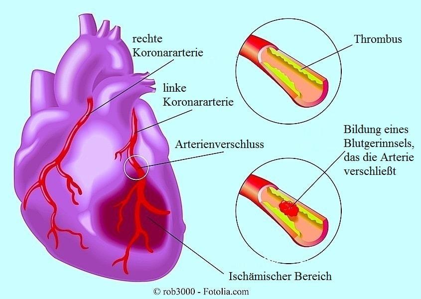 Herzinfarkt oder Myokardinfarkt