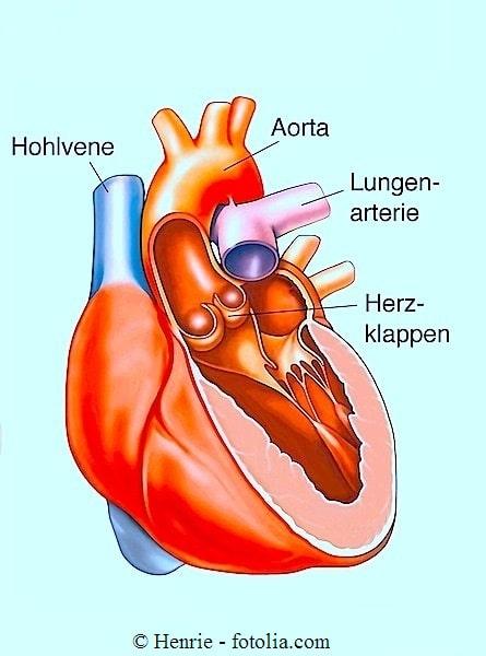 Herzstillstand
