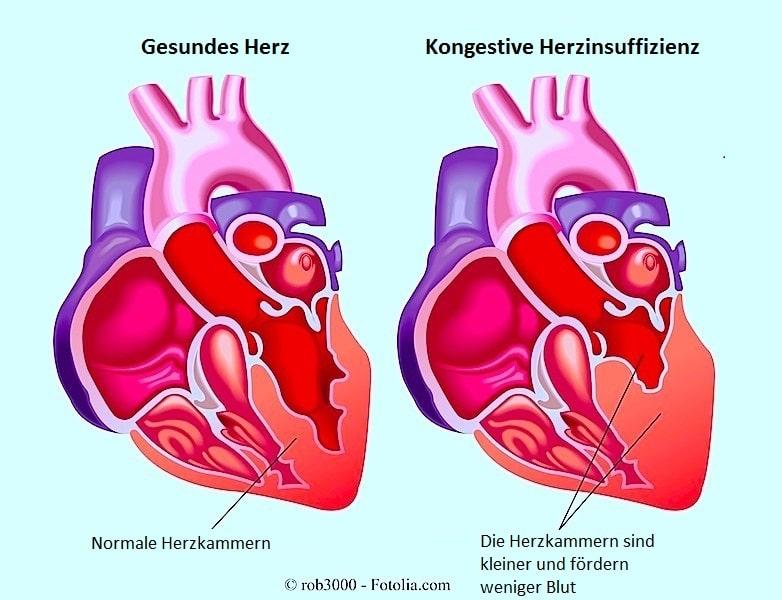 Kongestive Herzinsuffizienz