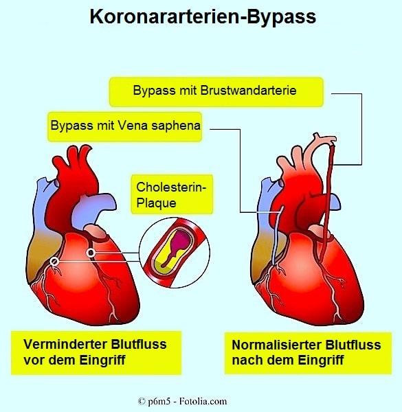 Koronararterien-Bypass