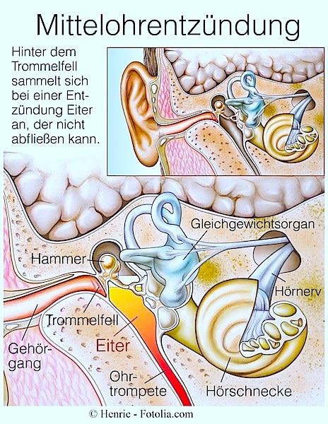 Mittelohrentzündung,Infektion,Eiter,Ohr,Kinder