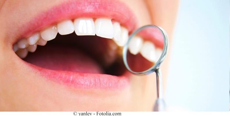 Zähne,Lächeln,Zahnbelag