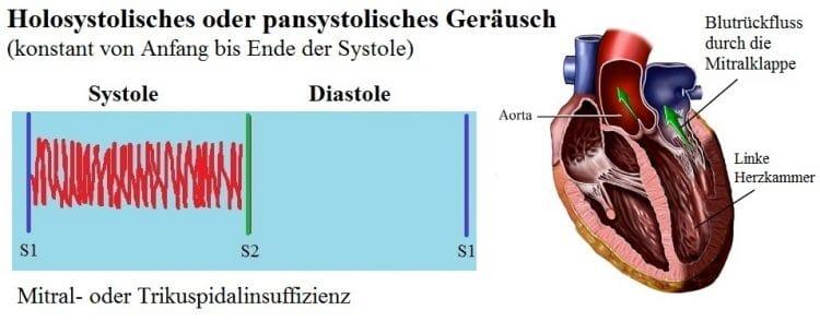 Pansystolisches-HerzgerÑusch