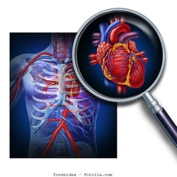 Herz,Mitralklappenprolaps