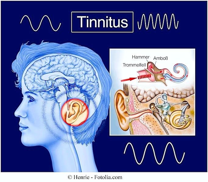 Symptome des Tinnitus und Behandlung