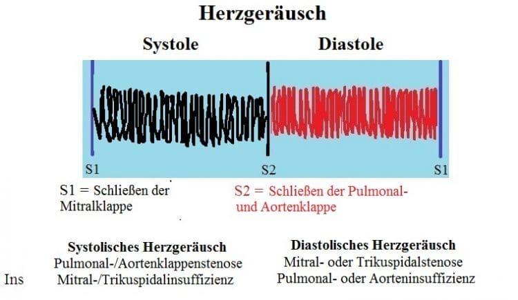 Systolisches-diastolisches-HerzgerÑusch