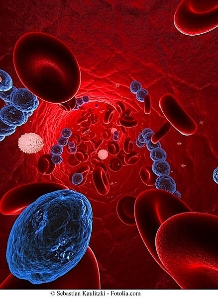 Bakterien,Perikarditis,Infektion