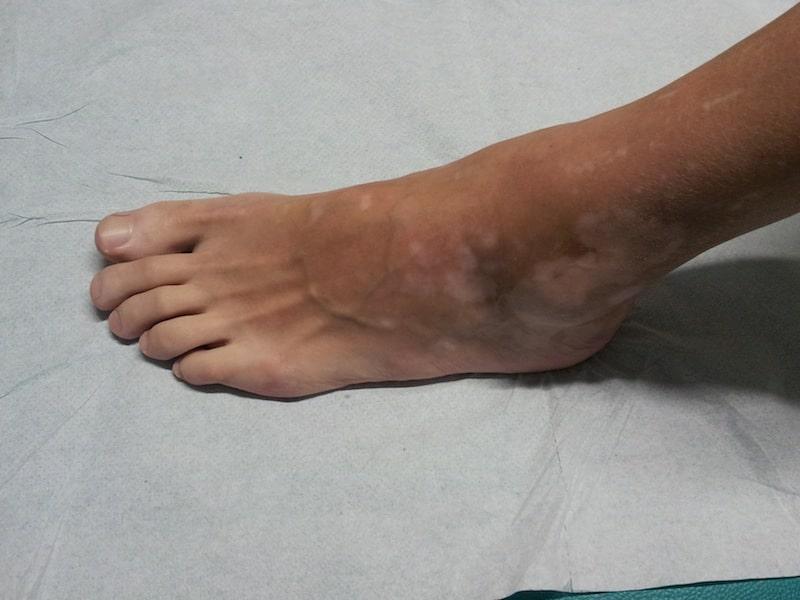 Vitiligo,Füße,weiße Flecke