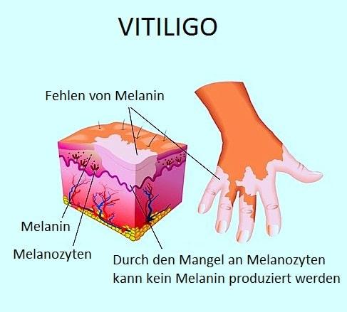 Behandlung von Vitiligo