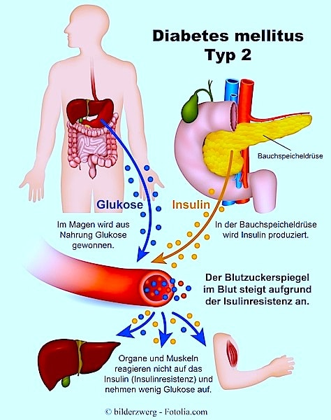 Diät für Diabetiker