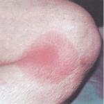 Erythema-migrans