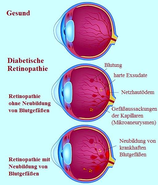 Retinopathie,diabetische,proliferative,Mikroaneurysmen,Exsudat,hart,Gefäße,Blut