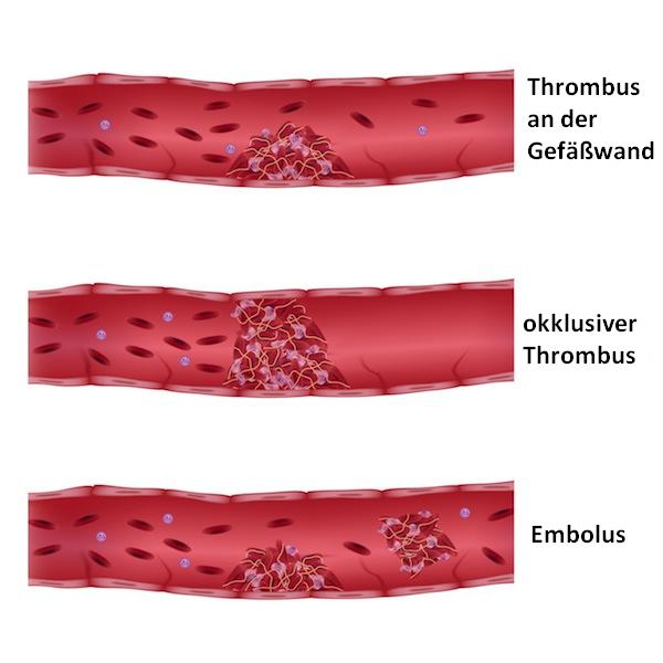 Blutkoagel,Thrombus,Embolus