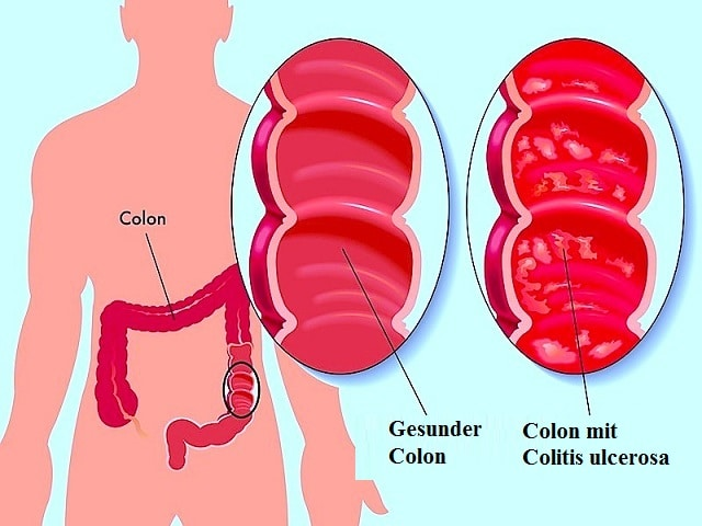 Colitis ulcerosa - Symtome Naturheilmittel und Operation