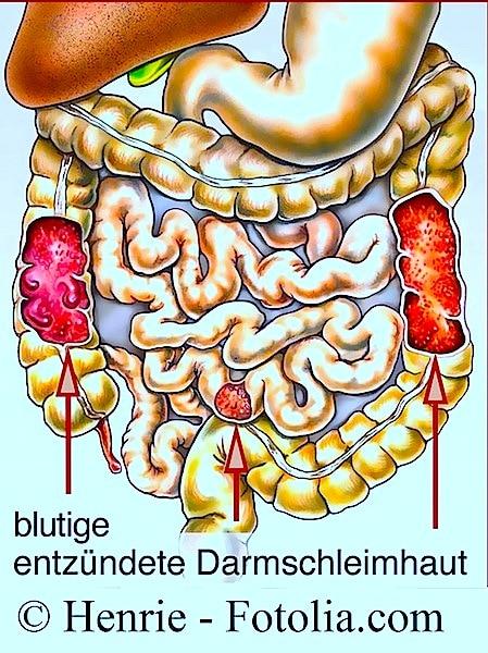 Dickdarmentzündung - Ursachen Symptome und Heilmittel