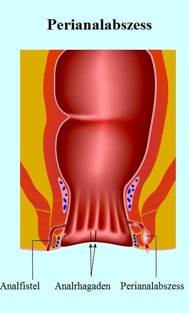 Perianalabszess - Symptome und chirurgischer Eingriff
