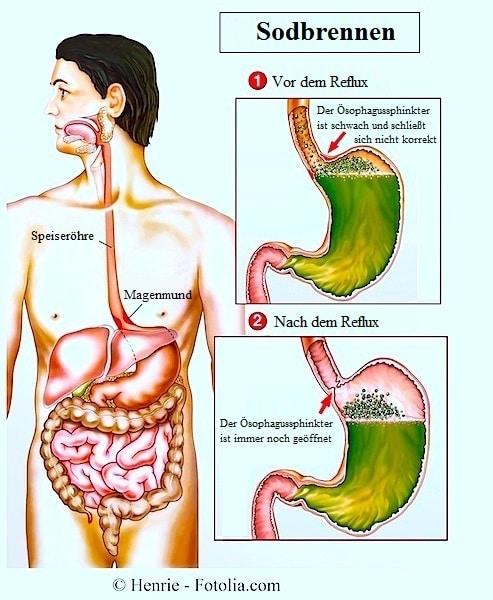Refluxösophagitis oder eosinophile Ösophagitis