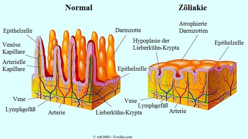 Sympotme der Zöliakie
