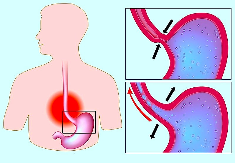 Refluxösophagitis,Sphinkter geschlossen