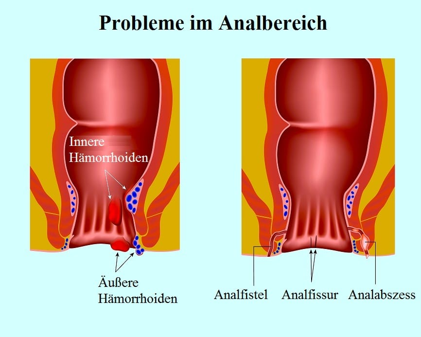 Analfistel - Ursachen, Symptome, Operation und Prognose
