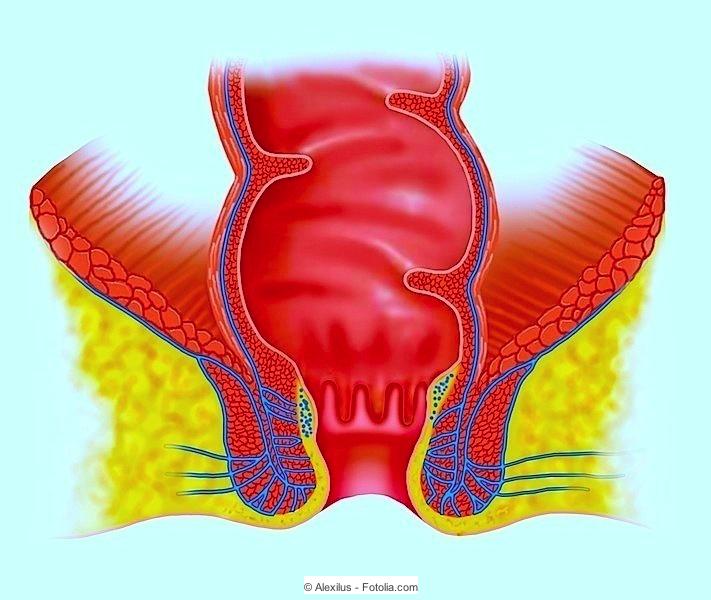 ursachen schmerzen geschlechtsverkehr geschlechtsverkehr foto