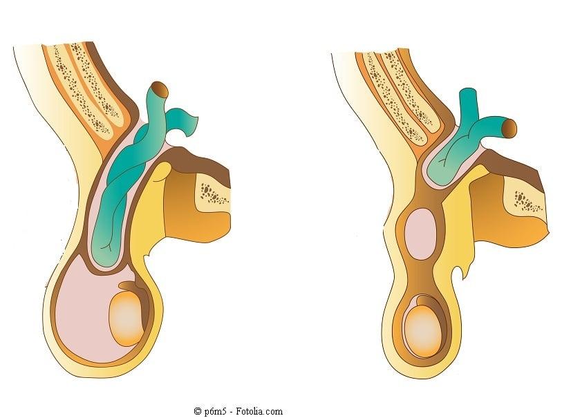 Leistenbruch - Symptome Komplikationen und chirurgischer Eingriff