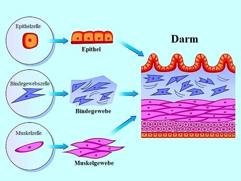 darmentzündung ohne durchfall