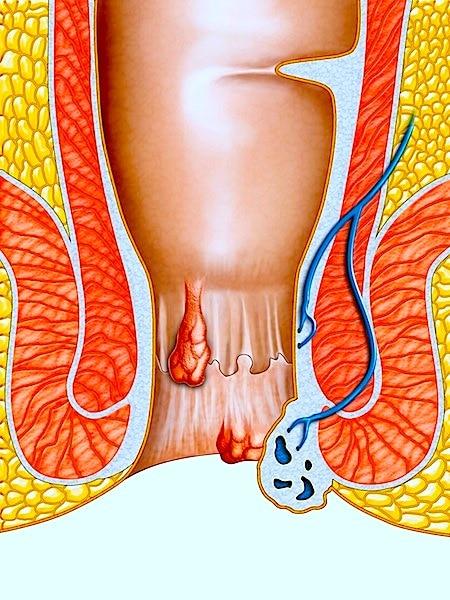 Behandlung von Hämorrhoiden und Heilmittel